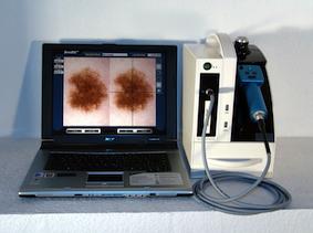 Mole-Scanner